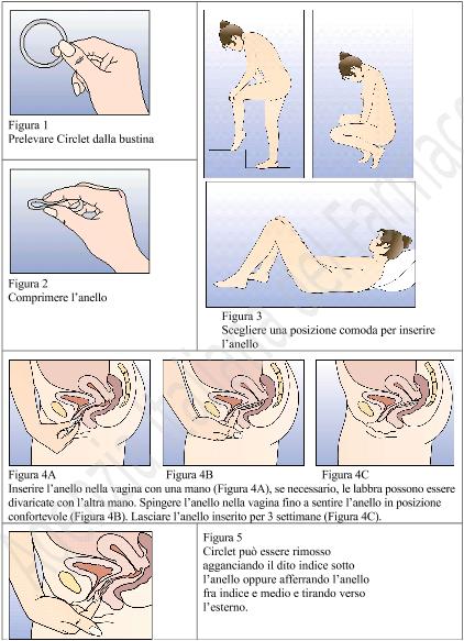come mettere correttamente gli anelli sul pene